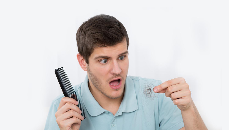 Causas de la caída circular del pelo