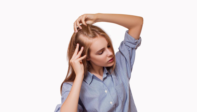 Pérdida del pelo difusa, ¿Cuáles son las causas?